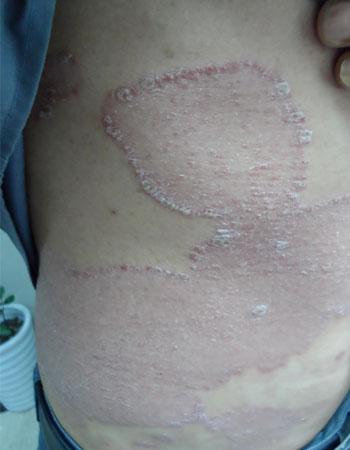 银屑病的临床表现有什么
